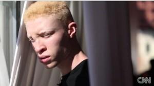 Albino Model Shaun Ross Talks with CNN.