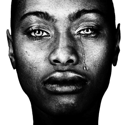 ALM, Acral lentiginous melanoma, African-Americans Skin Cancer