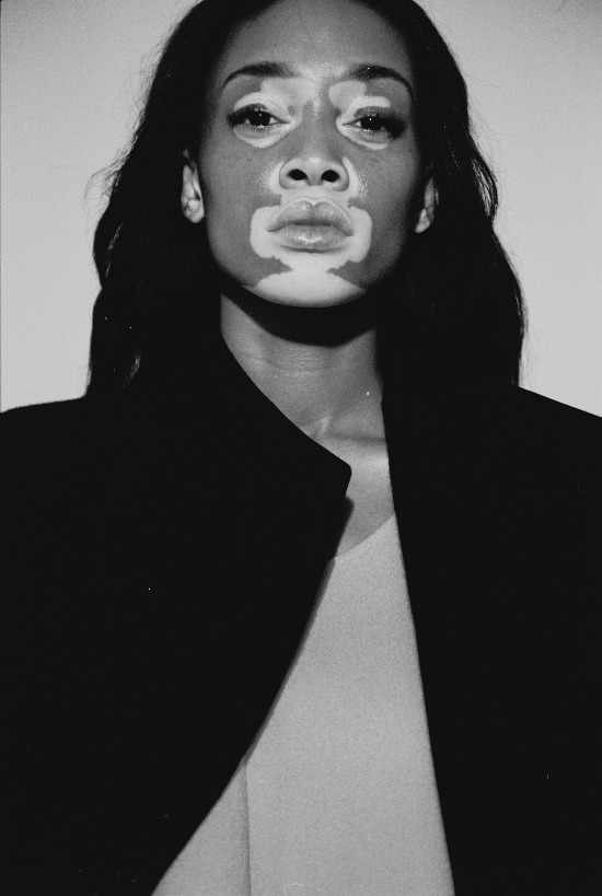 Chantelle Winnie, Winnie Harlow, Black Model With Vitiligo