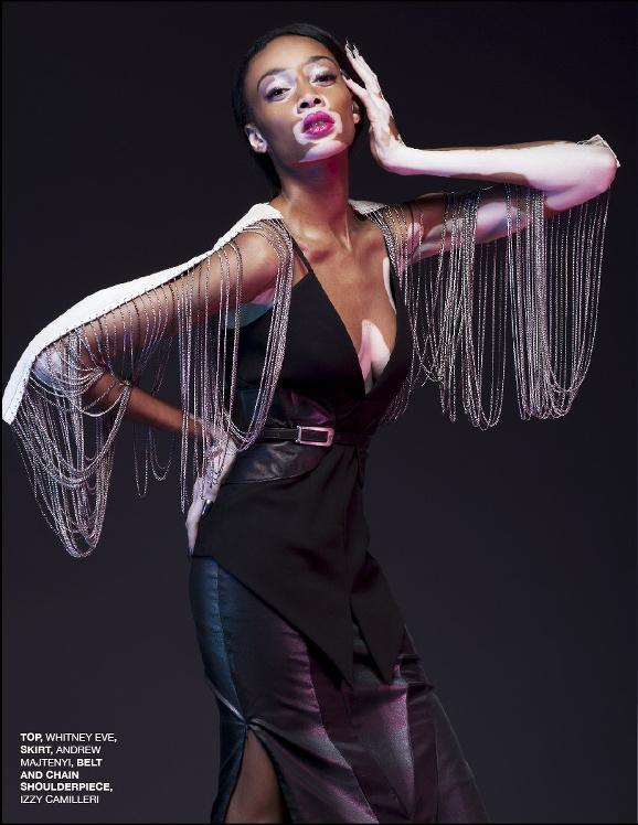 Winnie Harlow, Black Models Vitiligo, Winnie Harlow America's Next Top Model, NORD Magazine, Vitiligo Dark Skin