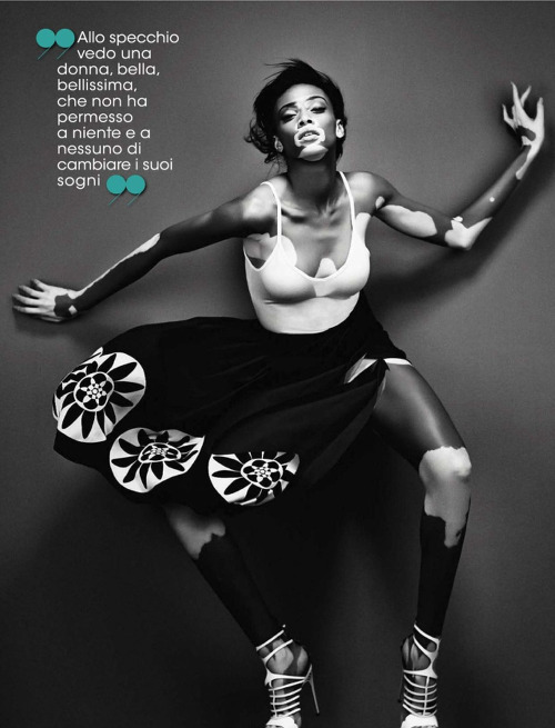 Chantelle Winnie Glamour Italia Giovanni Gastel Models with Vitiligo Black Fashion Models