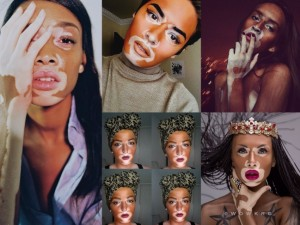 Chantelle Winnie, Model With Vitiligo, Draws Criticism After Defending Fans in Blackface Makeup.
