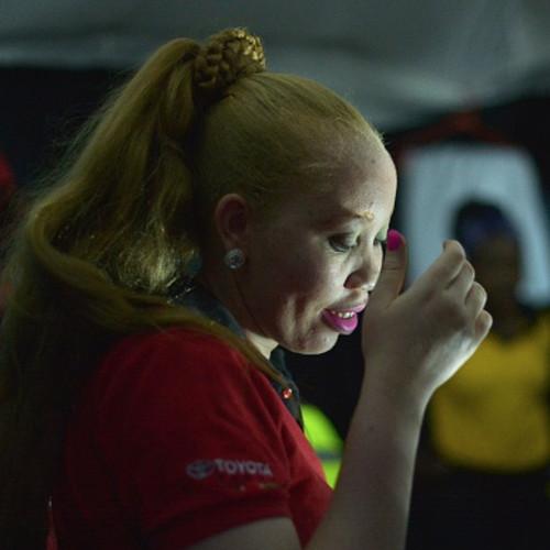 Albino Beauty Pageant Kenya
