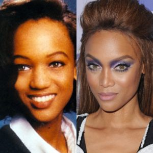 Tyra Banks Admits to Nose Job in New Memoir.