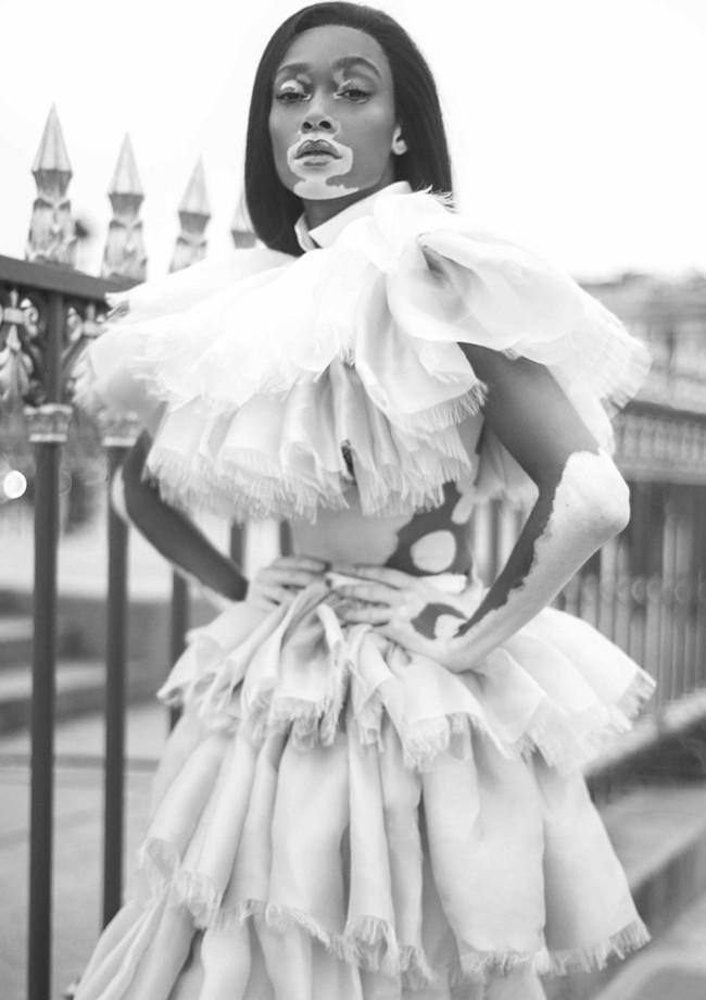 Winnie Harlow